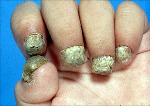 Candida of the nails