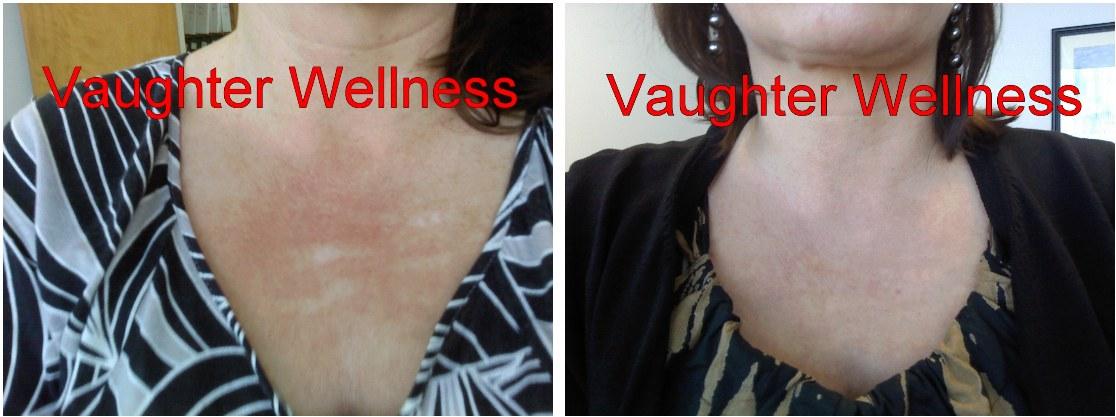 Dermaroller Before And After Acne Stretchmarks