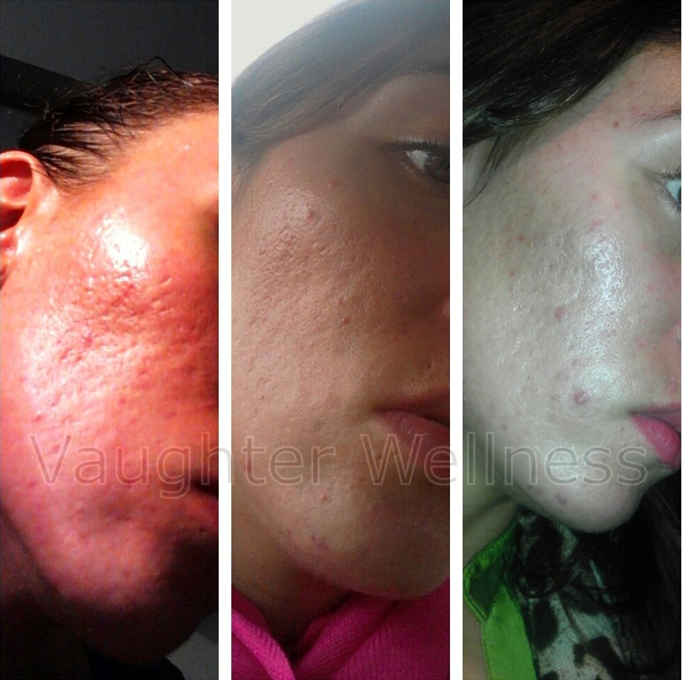 acne scars before and after dermaneedling