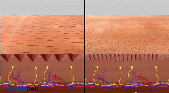 Dermapen Can Cause Skin Micro Tearing But The Derminator