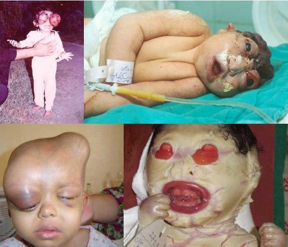 depleted-uranium-children