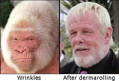 Dermarolling wrinkles before and after