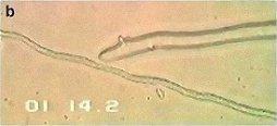 pythium-oligandrum2