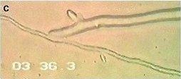 pythium-oligandrum3